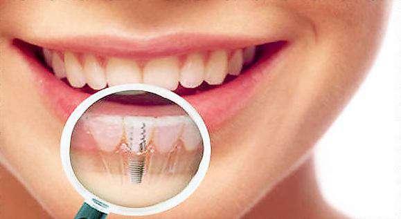 Сколько стоит один имплантант для зуба