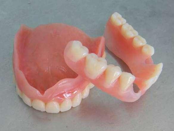 Зубные протезы съемные своими руками