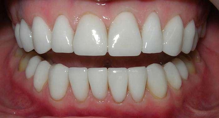 исправить кривой зуб виниром