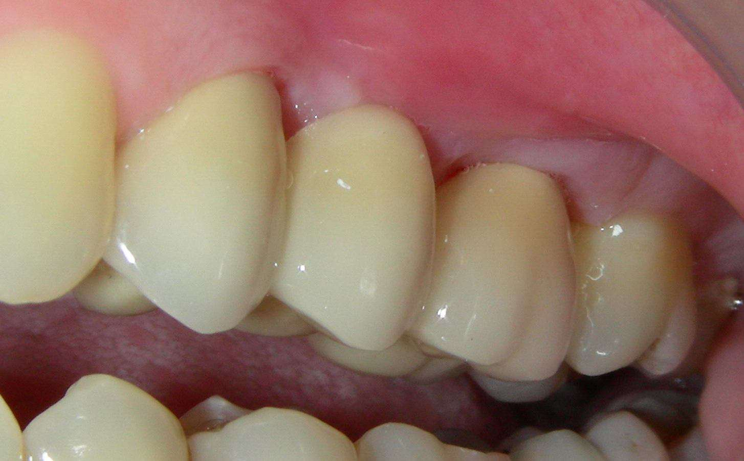 Лимон как отбеливающее средство для зубов
